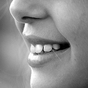 歯列矯正日記